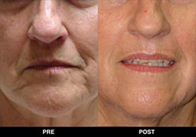 Kim 39 s permanent cosmetics photo gallery laser facial for Absolute salon oak ridge tn