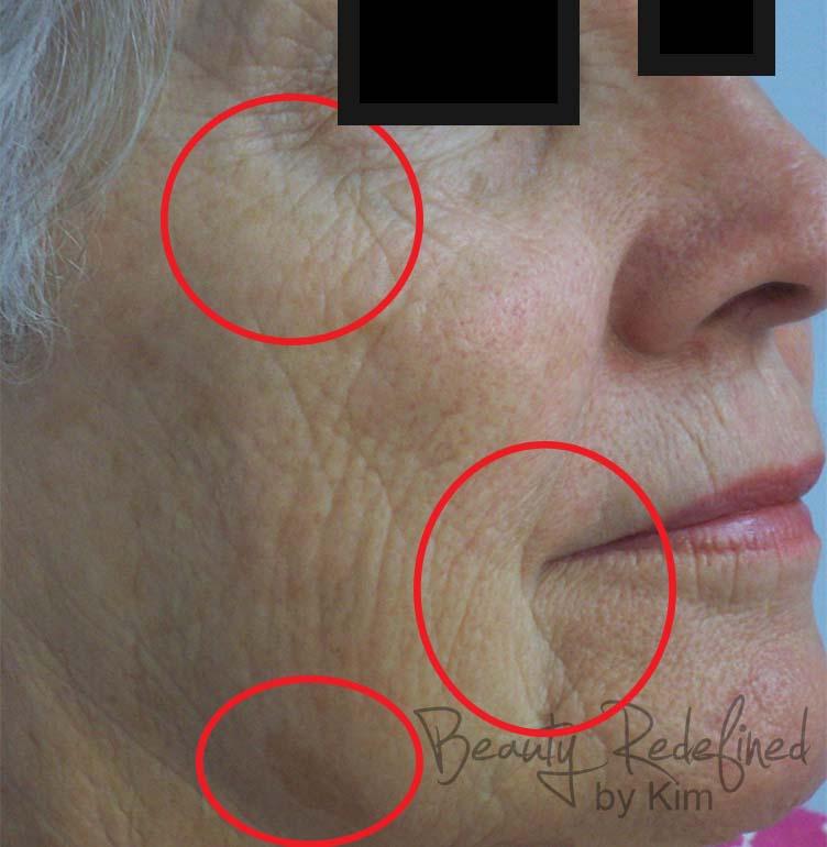 Kim 39 s permanent cosmetics photo gallery microneedling cit for Absolute salon oak ridge tn