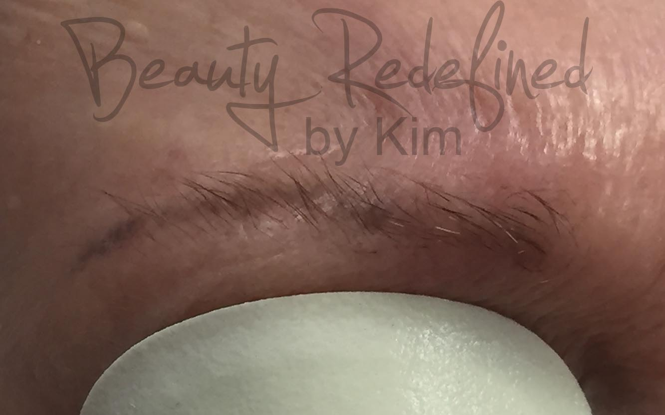 Kim\'s Permanent Cosmetics | Photo Gallery | Laser Tattoo Removal