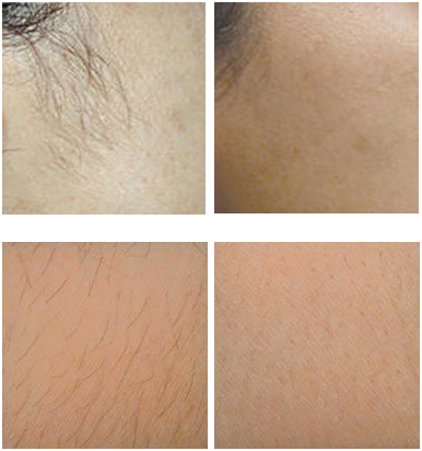 Kim S Permanent Cosmetics Laser Hair Removal