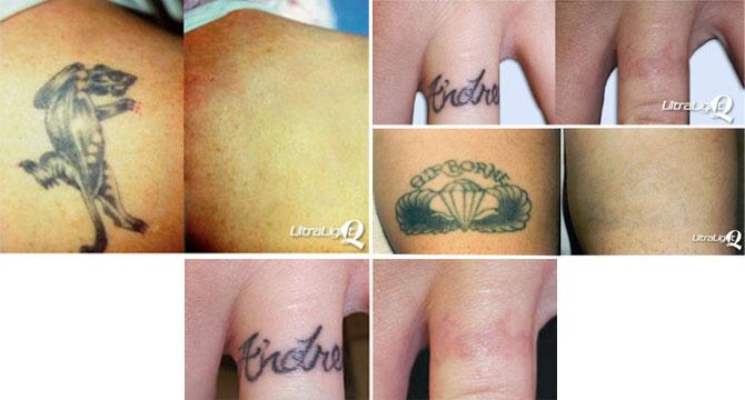 Kim 39 s permanent cosmetics laser tattoo removal for Laser tattoo removal certification